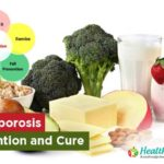 Osteoporosis- Prevention and Cure
